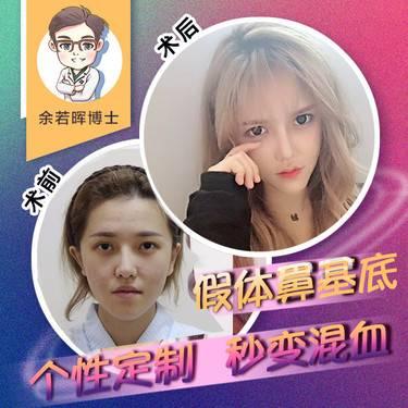 https://heras.igengmei.com/service/2018/08/22/c902ae4097-half
