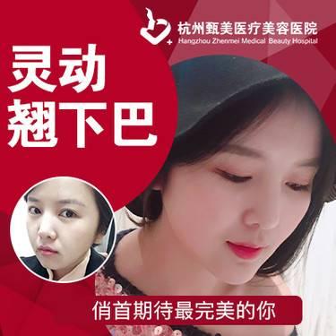 https://heras.igengmei.com/service/2019/02/22/b639779df9-half
