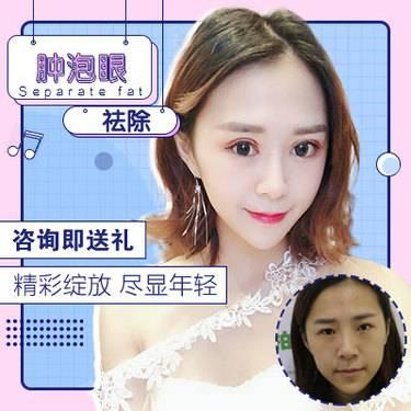 https://heras.igengmei.com/service/2019/05/05/23ed972117-half