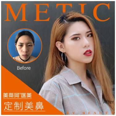 https://heras.igengmei.com/service/2019/05/09/883bf5ba8b-half