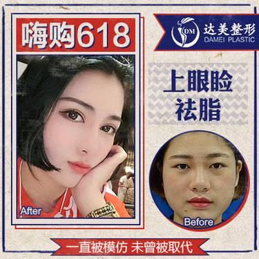 https://heras.igengmei.com/service/2019/05/31/3ea68a5f15-half