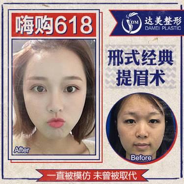 https://heras.igengmei.com/service/2019/05/31/9b09ad8fe8-half