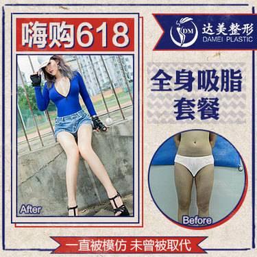 https://heras.igengmei.com/service/2019/05/31/b26fde961a-half