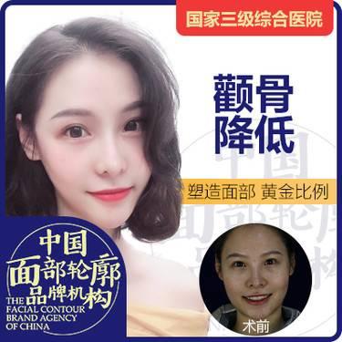 https://heras.igengmei.com/service/2019/07/19/6cd42cb41f-half