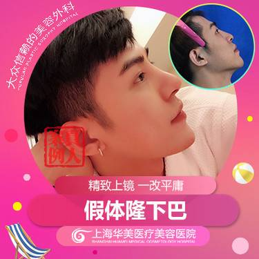 https://heras.igengmei.com/service/2019/08/19/0d5366186e-half