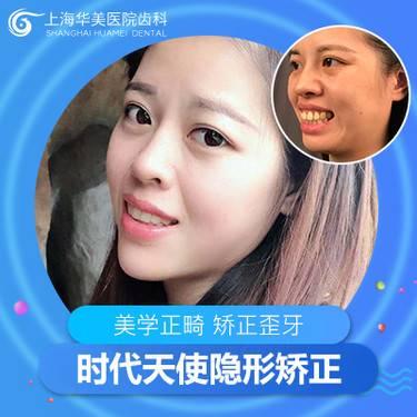 【上海@张晓峰】隐形矫正