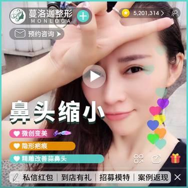 https://heras.igengmei.com/service/2019/08/21/31e02f2134-half