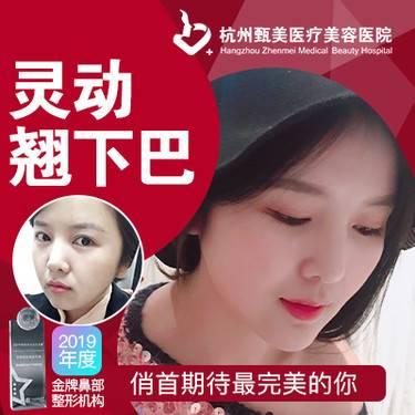 https://heras.igengmei.com/service/2019/09/19/c278c2967f-half