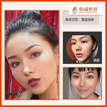 https://heras.igengmei.com/service/2019/09/26/d665a58832-half