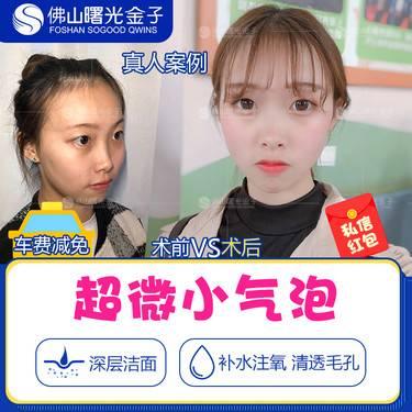 https://heras.igengmei.com/service/2019/09/30/a9528cfcc1-half