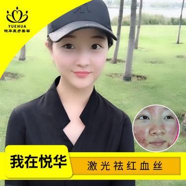 【西安@西安悅華醫療美容門診部】激光祛紅血絲