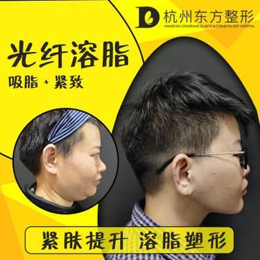 https://heras.igengmei.com/service/2019/10/22/d3bafa33e1-half