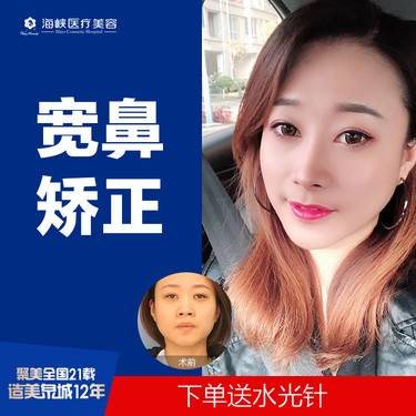 https://heras.igengmei.com/service/2019/10/23/ebb5ed6c52-half
