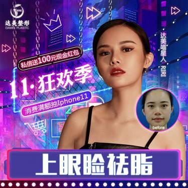https://heras.igengmei.com/service/2019/10/30/1afd4fbfbb-half