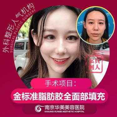 https://heras.igengmei.com/service/2019/11/10/138c10f253-half