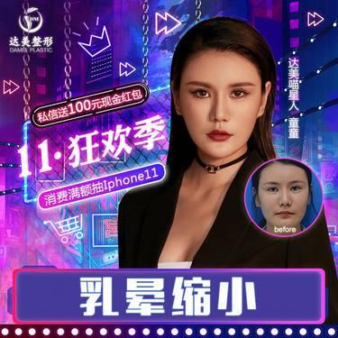https://heras.igengmei.com/service/2019/11/10/1882cb07dc-half