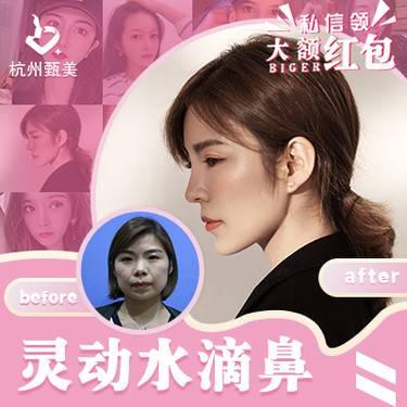 https://heras.igengmei.com/service/2019/11/14/10e21d241f-half