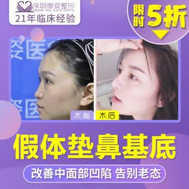 https://heras.igengmei.com/service/2019/11/20/77f2cad837-half