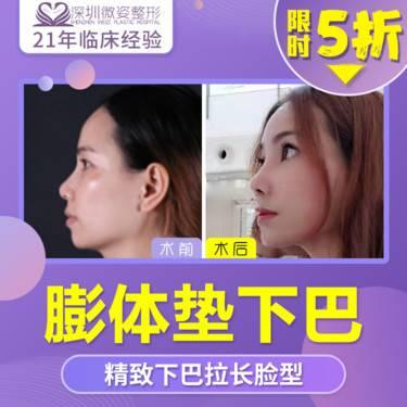 https://heras.igengmei.com/service/2019/11/21/5483ba0ec1-half