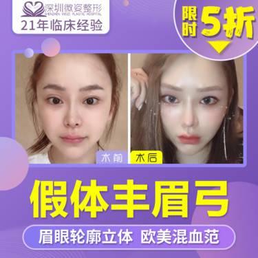 https://heras.igengmei.com/service/2019/11/21/cca59ccf3f-half
