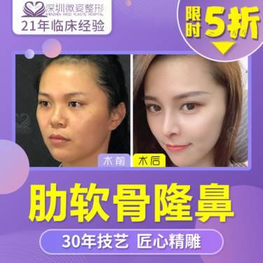 https://heras.igengmei.com/service/2019/11/21/f71e997c93-half