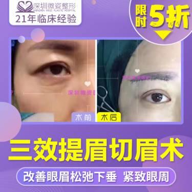 https://heras.igengmei.com/service/2019/11/28/71678de7c1-half