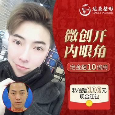 https://heras.igengmei.com/service/2019/11/29/84e37fd857-half