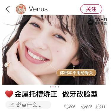 https://heras.igengmei.com/service/2019/11/30/56d70538f9-half