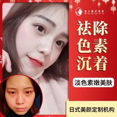 https://heras.igengmei.com/service/2019/12/04/cbea4bf08a-half