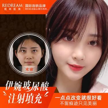 https://heras.igengmei.com/service/2019/12/06/881c4455ba-half