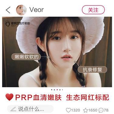 【南通@谢志超】PRP自体血清美肤