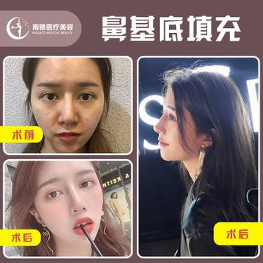 https://heras.igengmei.com/service/2019/12/18/80ac3594dd-half