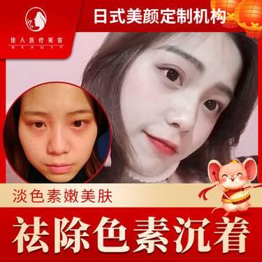 https://heras.igengmei.com/service/2020/01/14/eca88f08e5-half