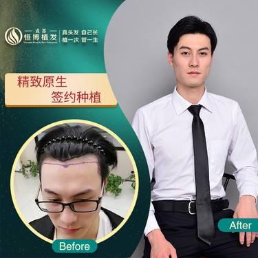 https://heras.igengmei.com/service/2020/04/02/7563126e22-half