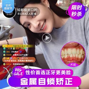 【成都@王凌成】托槽牙齿矫正