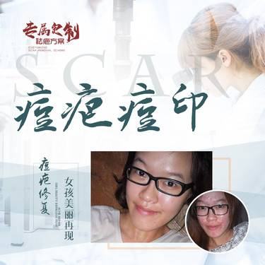 https://heras.igengmei.com/service/2020/06/30/cc033fc155-half