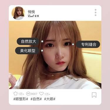 https://heras.igengmei.com/service/2020/07/07/b9739c4475-half