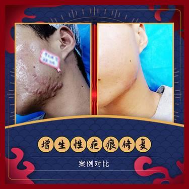 【广州@广州市荔湾区肤康皮肤科门诊部】祛疤套餐整形项目图片