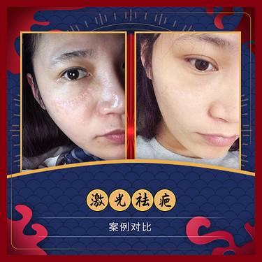 【广州@广州市荔湾区肤康皮肤科门诊部】激光祛疤整形项目图片